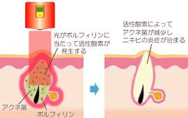 ポルフィリンに光を当てて活性酸素発生を促す