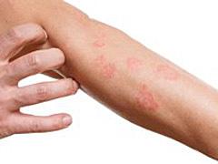 アレルギー性接触皮膚炎(かぶれ)