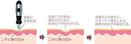 ダーマペンによるニキビ跡治療