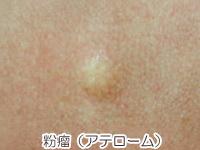 粉瘤(アテローム)の画像