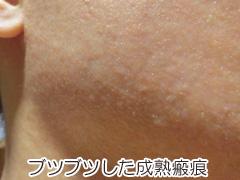 ブツブツした成熟瘢痕の画像