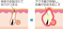 アクネ菌とニキビの発展の仕組み