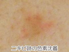 ニキビ跡の炎症後色素沈着