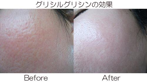 グリシルグリシンによる毛穴開き治療の効果画像