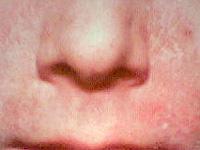 脂漏性皮膚炎の画像