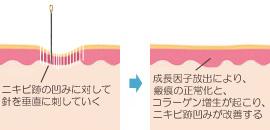 ニキビ跡を針で改善できる仕組み