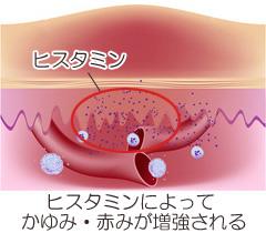 ヒスタミンによるかゆみ悪化の写真
