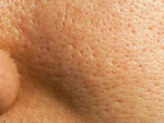 頬の開いた毛穴の画像
