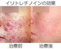 イソトレチノインを使ったニキビ治療の画像