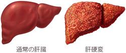 肝臓と肝硬変の比較