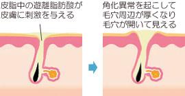 毛穴の開きと遊離脂肪酸・不飽和脂肪酸