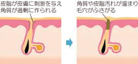 黒ニキビ(角栓)の発生の仕組み