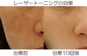 レーザートーニングの肝斑や炎症後色素沈着の効果の画像
