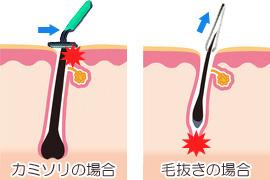 カミソリと毛抜きによる毛嚢炎発生仕組み