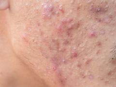 難治性にきび・化膿ニキビ