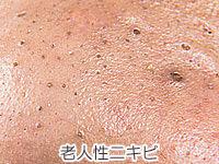 老人性ニキビの写真