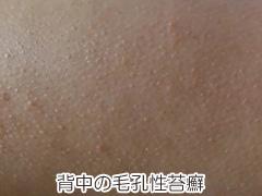 背中の毛孔性苔癬の画像