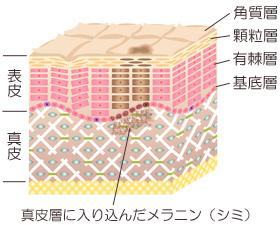 皮膚の構造と真皮に入り込んだシミの画像