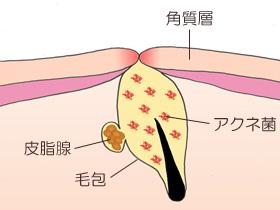 ニキビが発生する仕組み・皮膚の構造