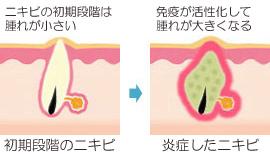 初期にきびと炎症にきび