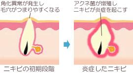 アクネ菌とニキビ発生の仕組み