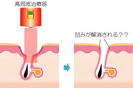 高周波治療器によるニキビ治療