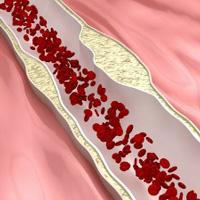 詰まった血管の画像